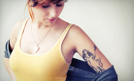 One, Four, or Eight Laser Tattoo-Removal Sessions for Up to 4 Square Inches at Laser My Tat (Up to 75% Off)