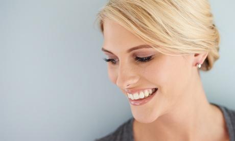 Brackets metálicos, cerámicos, de zafiro o ortodoncia en 1 o 2 arcadas, limpieza y revisiones desde 229,90 € en Addenta