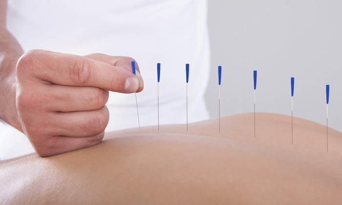 Songshine Acupuncture - Flatiron District: One or Three Acupuncture Treatments at Songshine Acupuncture (Up to 67% Off)