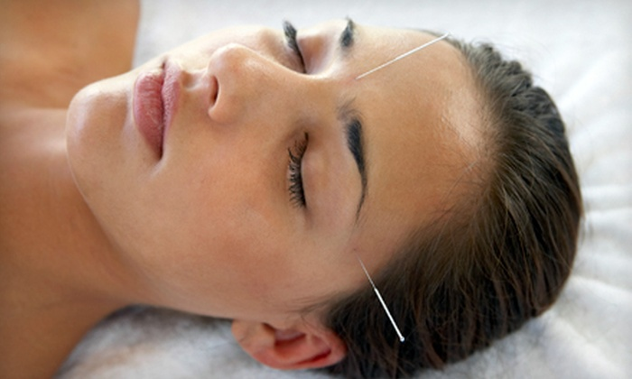 Acupuncture Connecticut - Branford: One or Three 60-Minute Acupuncture Facelifts at Acupuncture Connecticut (Up to 59% Off)