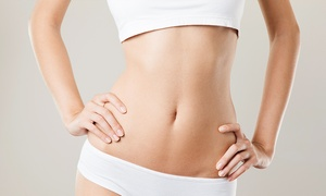 Beauty by Design Clinic: Cryogenic Lipolysis from £99 at Beauty By Design