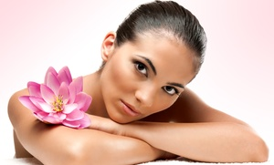 BioSkin Laser: Four, Six, or Eight Microdermabrasion Treatments at BioSkin Laser (Up to 88% Off)