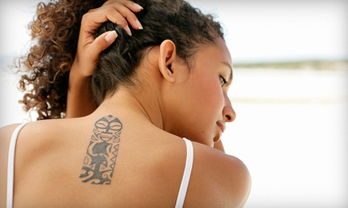 Thurston House Salon & Day Spa - Hanestown: Three Tattoo-Removal Treatments for Up to 3, 6, or 12 Square Inches at Thurston House Salon & Day Spa (Up to 78% Off)