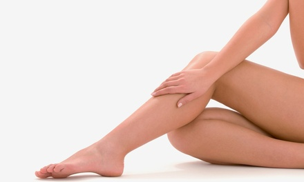 Two, Four, or Six Laser Spider-Vein-Removal Treatments at Creative Skin Care (Up to 75% Off)