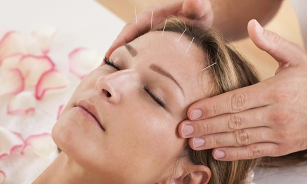 $45 for a 90-Minute Scalp or Regular Acupuncture Treatment at Pinnacle Health ($90 Value)