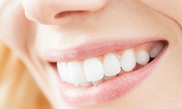 Le Blanc - San Martino Buon Albergo (VR): Una o 2 sedute di sbiancamento cosmetico dei denti da 24,99 €