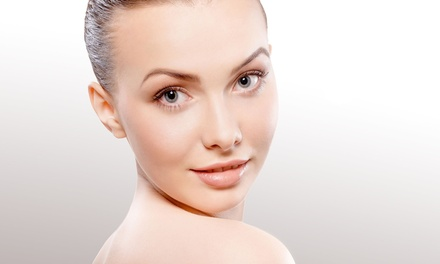 One or Two Sculptra Dermal Filler Injections at Results Medical Spa (38% Off)
