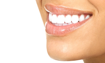 One or Three 30-Minute In-Office Teeth-Whitening Treatments at Oxygen MediSpa & Sauna (Up to 62% Off)