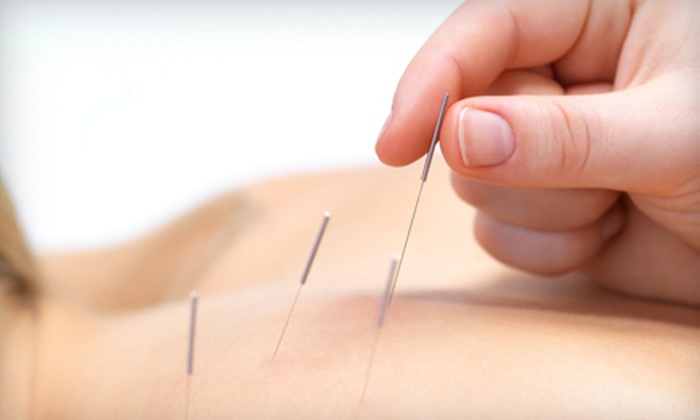 Boca Acupuncture - Boca Raton: One, Two, or Three Acupuncture Packages at Boca Acupuncture in Boca Raton (Up to 80% Off)