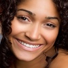 Up to 56% Off Teeth Whitening Packages
