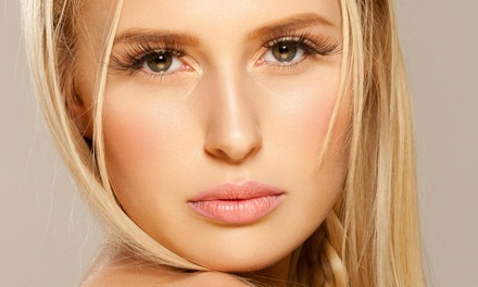 $139 for 40 Units of Dysport at The Beauty Cell Inc. ($340 Value)