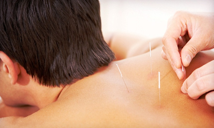 Element 5 Om - Greenway - Upper Kirby: One or Two One-Hour Acupuncture Sessions at Element 5 Om (Up to 64% Off)