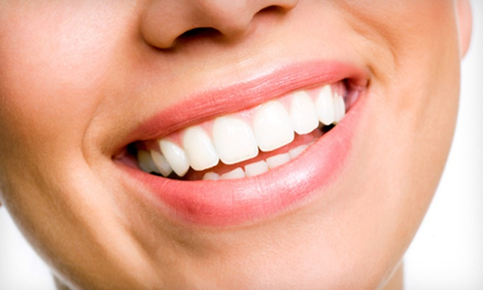 Dr. Lisa Chan-Flagg - Los Angeles: $129 for an In-Office Teeth-Whitening Session from Dr. Lisa Chan-Flagg in Santa Monica ($550 Value)