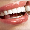 Up to 83% Off at Concerned Dental Care