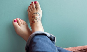 LaserAway: Three Laser Tattoo-Removal Treatments on a Small, Medium, or Large Area at LaserAway (Up to 82% Off)