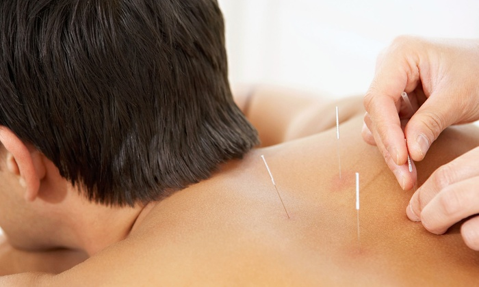 Mind Body Medicine Acupuncture - Glenwood Landing: One 60-Minute Acupuncture Treatment with Optional Tui Na Bodywork at Mind Body Medicine Acupuncture (Up to 84% Off)