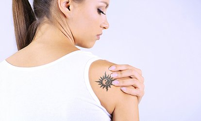 image for <strong>Tattoo Removal</strong> at Severn River ENT Plastic and Laser Surgery (Up to 75%Off)