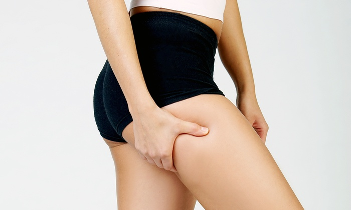 Synergie - The Plaza: Two or Four Cellulite-Reduction Treatments at Synergie (Up to 52% Off)