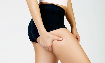 Two or Four Synergie Cellulite-Reduction Treatments at Club Synergie (Up to 56% Off)