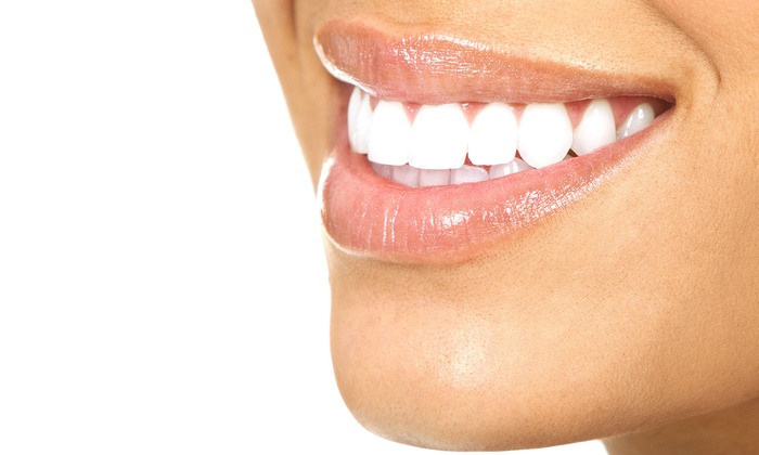 Guerra Dental - Palmer Park: $2,695 for a Complete Six Month Smiles Orthodontic Treatment at Guerra Dental ($5,393 Value)