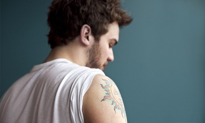 "Ederra Medspa & Wellness - Longview: Three Laser Tattoo-Removal Sessions for a 2""x2"" or 4""x4"" Area at Ederra Medspa & Wellness (Up to 80% Off)"