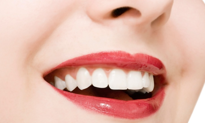 Cary Charlin, D.D.S. - West Los Angeles: Exam, X-Ray, and Cleaning with Optional Take-Home Teeth-Whitening at Cary Charlin, D.D.S. (Up to 90% Off)