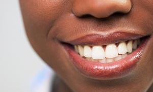 Faircourt Dental Smile Enhancement Studio: $146 for a Two-Hour Venus White Max Teeth-Whitening Treatment at Faircourt Dental Smile Enhancement Studio ($361 Value)