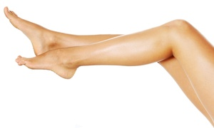 Vein Associates of Edina: $109 for Two Sclerotherapy Spider-Vein Treatments at Vein Associates of Edina ($600 Value)