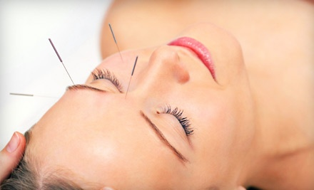 Two acupuncture treatments with initial consultation