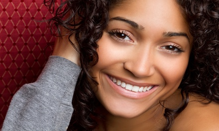 Dental Checkup with Optional In-Office Teeth Whitening  at Smile Center of Los Gatos (Up to 90% Off)