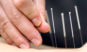 Acupuncture Together: One or Three Acupuncture Treatments at Acupuncture Together in Cambridge (Up to 67% Off)