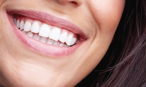 The Dental Centre: Dental Consultation, Scale & Polish from R250 for One with Optional Teeth Whitening at The Dental Centre (Up to 55% Off)