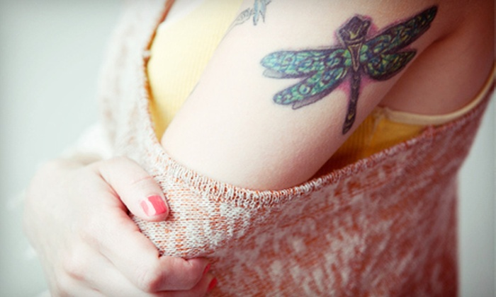 """Tattoo Removal Shop - Tattoo Removal Shop: $50 for a Tattoo-Removal Session for Area Up to 4""""x6"""" at Tattoo Removal Shop (Up to $300 Value)"""