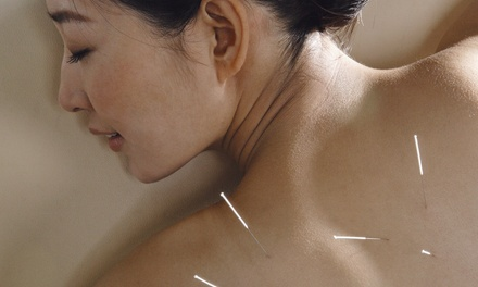 Acupuncture or Weight-Loss Evaluation at Active Living Health Center (Up to 58% Off). Three Options Available.
