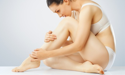 $169 for a Sclerotherapy Spider-Vein-Removal Treatment at Cincinnati Institute of Plastic Surgery ($400 Value)