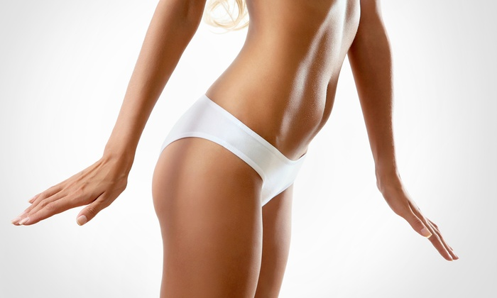Elase Medical Spas - Multiple Locations: Three or Six VelaShape Body-Contouring Treatments at Elase Med Spas (Up to 88% Off)