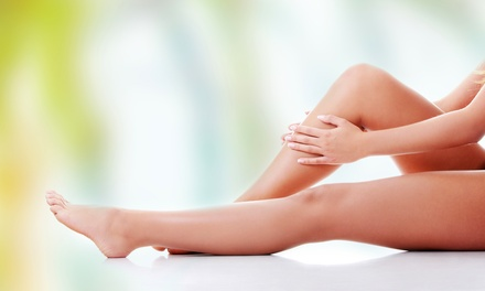 One, Two, or Three Laser SpiderVein Removal Treatments at Newity Laser (Up to 54% Off)