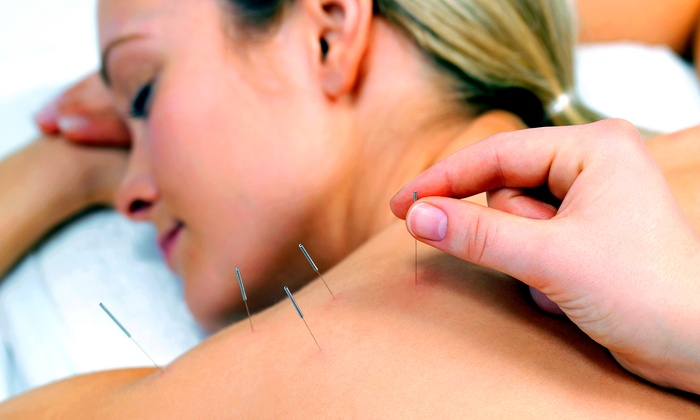 Carlsbad Acupuncture - Carlsbad Acupuncture: 1, 3, or 5 Acupuncture Treatments with Consult and Qi-Gong Techniques at Carlsbad Acupuncture (Up to 74% Off)