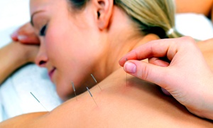 Carlsbad Acupuncture: 1, 3, or 5 Acupuncture Treatments with Consult and Qi-Gong Techniques at Carlsbad Acupuncture (Up to 73% Off)