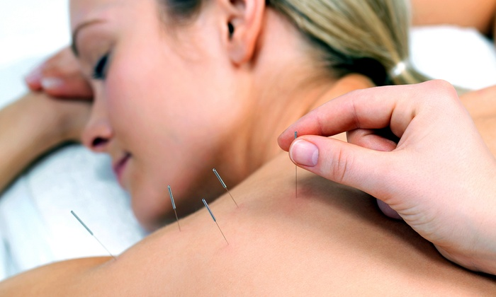 Greater Chicago Specialty Physicians Group - Schaumburg: Consultation with One, Two, or Three Acupuncture Sessions at Greater Chicago Specialty Physicians Group (Up to 77% Off)