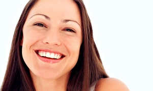 New Image Laser Skin Center: Laser Teeth-Whitening Treatment with Optional Take-Home Whitening Pen at New Image Laser Skin Center (Up to 75% Off)