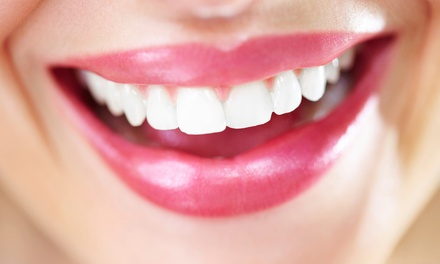 $2,799 for a Complete Invisalign Treatment at Smile :Dzine ($7,000 Value)