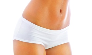 VGmedispa: One or Two Sessions of Alma Laser Tummy Tightening Treatment Plus Consultation from VGmedispa (Up to 92% Off)