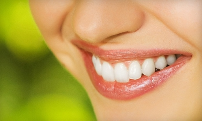 Smiles by Design Dental and Main Street Dental - Multiple Locations: 4, 6, 8, or 10 Veneers at Smiles by Design Dental and Main Street Dental (Up to 69% Off)