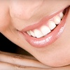 Up to 85% Off Teeth Whitening at Pacific Tanning