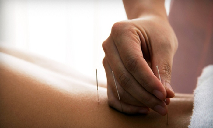 Affinity Acupuncture and Rolfing - Los Angeles : $49 for Consultation and Two One-Hour Acupuncture Treatments at Affinity Acupuncture and Rolfing (Up to $175 Value)