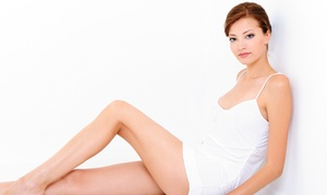 Florida Vein Care Specialists: Two or Four VeinGogh Spider-Vein Removal Treatments with Consultation (Up to 79% Off)
