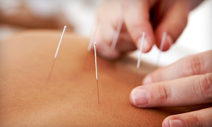 MiBaSo - Bay Harbor Islands: One-, Three-, or Five-Visit Acupuncture Package with Acupuncture and Infrared Therapy at MiBaSo (Up to 87% Off)