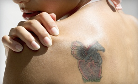 1 Laser Tattoo-Removal Treatment (a $125 value) - Houston Tattoo Removal Clinic in Houston