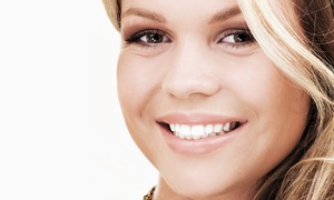 Hollywood Dental Care: $32 for a Dental-Checkup Package with Exam, X-rays, Cleaning, and Fluoride at Hollywood Dental Care ($395 Value)